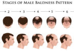 Why Hair Loss in Men, Causes Of Hair Loss in Men
